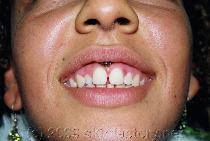 Piercing - Galerie - Lippenb U00e4ndchen